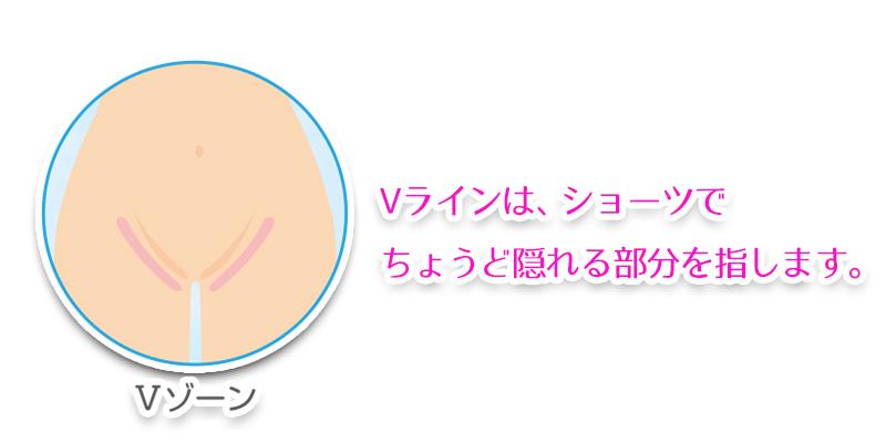 【Vライン脱毛】特徴とメリット・デメリット