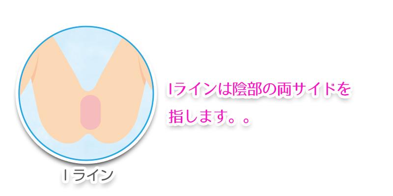 【Oライン脱毛】特徴とメリット・デメリット